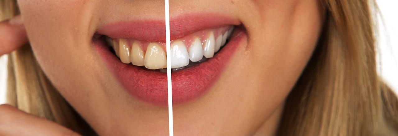 Strahlend weiße Zähne – aber bitte natürlich